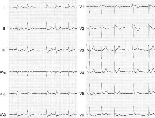 BRAVE Study – Ablation in Brugada Syndrome for the ...