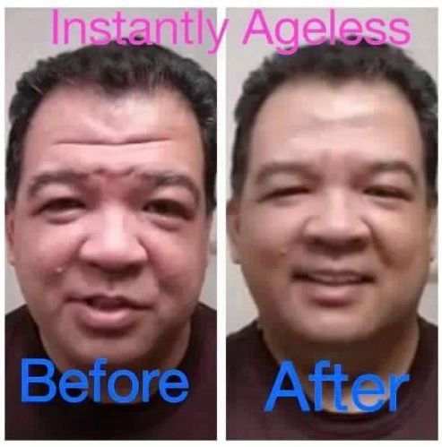 Instantly Ageless strikes again! Absolutely amazing right before our eyes. FREE Samples available. Just ask by text >> 623.680.7494  Samples sent same day. Ask to see video.