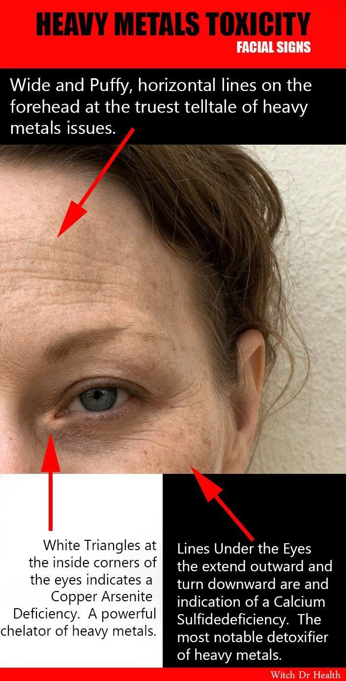 facial diagnosis of cell salt deficiencies a user