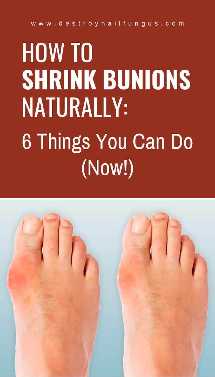 How to shrink bunions naturally 6 things you can do now