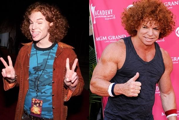 Scott Thompson (Carrot Top) Top And Steroid Abuse On Plastic Surgery Disasters