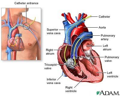 Right heart catheterization involves the passage of a catheter (a thin flexible tube) into the right side of the heart to obtain diagnostic information about the heart and for continuous monitoring of heart function in critically ill patients.