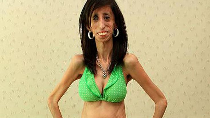 """They Called Her """"The World's Ugliest Girl"""" & Her Response is Unbelievably Beautiful. I literally cried. - shockable"""