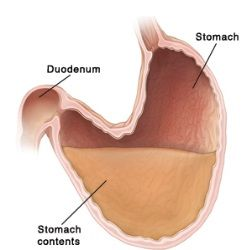 7 Amazing Natural Cure For Gastroparesis.  My GI Dr told me NO GUM (since we swallow air when we chew it, which will create bloating).  The rest all seem to work well.  I have elected at home smoothies too (protein).
