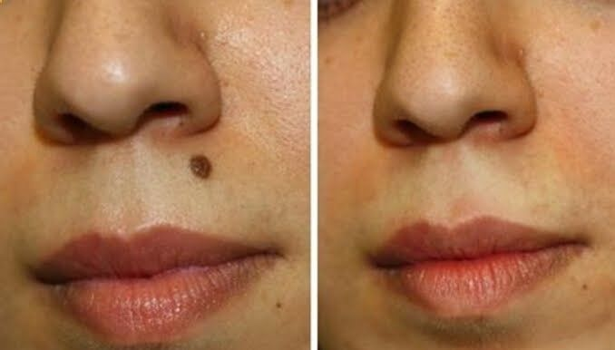 Most of the people have moles. This occurs due to lot of melanocytes in the skin. It is important to get rid of their moles because they might be cancerous for some people. Many mole removal creams and ointment are available in the market to get rid of t