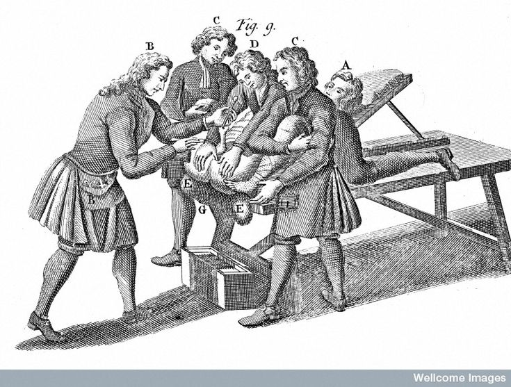 Surgical technique for the removal of bladder stone in 1828  Although the operation itself lasted only a matter of minutes, lithotomic procedures were painful, dangerous and humiliating. The patient—naked from the waist down—was bound in such a way as to ensure an unobstructed view of his genitals and anus.  Afterwards, the surgeon passed a curved, metal tube up the patient's penis and into the bladder. He then slid a finger into the man's rectum, feeling for the stone