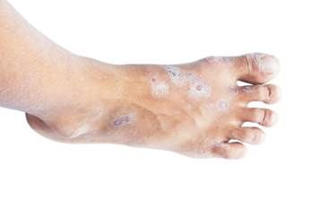 Colloidal Silver Beats Hand, Foot and Mouth Disease