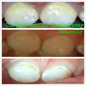 GreenEarthMama: Curing Toddler Tooth Decay Naturally