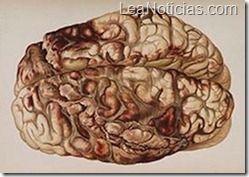 Descubren la región del cerebro que te vuelve egoísta - http://www.leanoticias.com/2013/01/30/descubren-la-region-del-cerebro-que-te-vuelve-egoista/