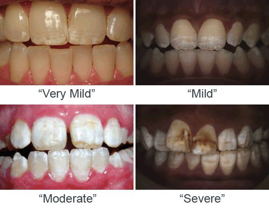 Overdosed on Fluoride: The Dental Fluorosis Problem