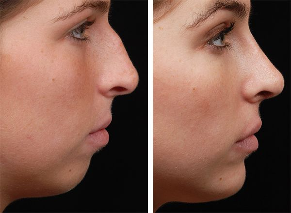 11 Best Images About Nose Job Rhinoplasty Nose Job Cost