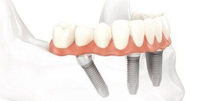 Stomatologia estetyczna, implanty kraków, chirurg stomatolog