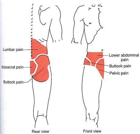 (Sciatica) Lower Torso | The Trigger Point & Referred Pain Guide