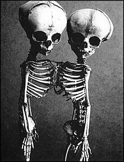 Conjoined Siamese Fetal Skeletons: Conjoined Twins, Siam Twin, Fetal Skeletons, Life And Death, Siam Fetal, Twin Skeletons, Siamese Fetal, Conjoined Siamese, Twin Siamese