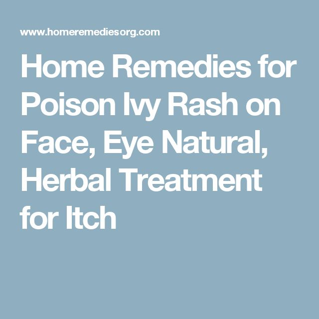 Best 25+ Poison ivy rash treatment ideas on Pinterest Poison oak - food poisoning duration