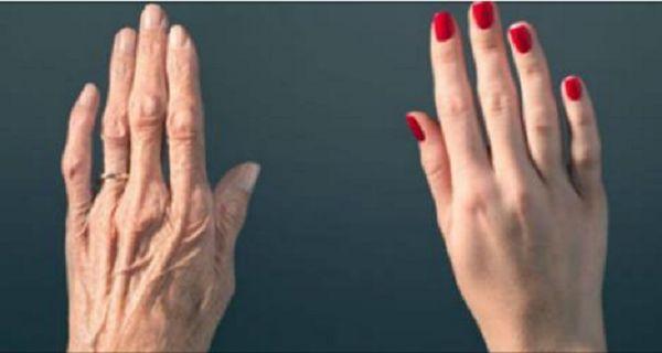 Tus manos revelan tu edad! Descubre cómo parar eso!
