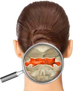 → La correction de l'Atlas: contre migraine, mal de dos, coup de fouet cervical ←