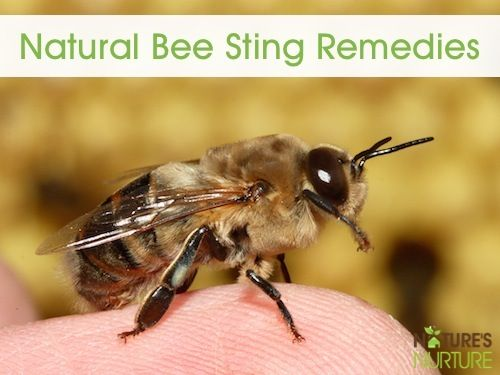 11 Natural Bee Sting Remedies - Nature's Nurture