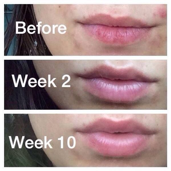 Best Natural Product For Chapped Lips