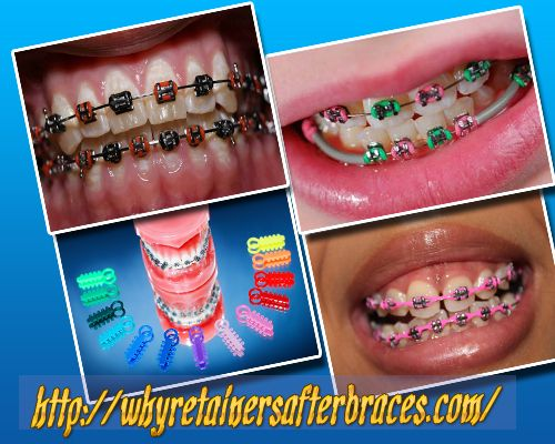 braces color chooser - photo #19