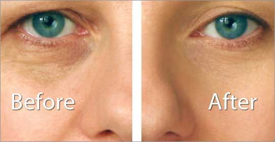 Non-Surgical Facelift Before and After. Interesting how this doctor does this. www.wickedbeauty.com.au