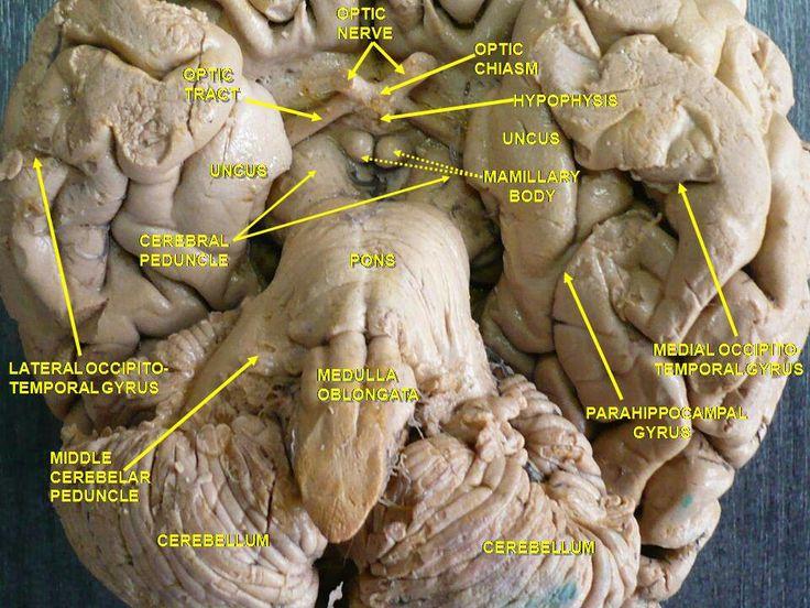 Cerebro visto desde la parte inferior en la que se puede apreciar en el centro profundo el cuerpo mamilar,la hipófisis y el quiasma óptico. Ref. Histología Ross 7 pp 804.