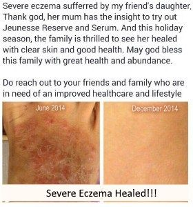 Severe eczema suffered by my friend's daughter and how she cured it * Details can be found by clicking on the image.