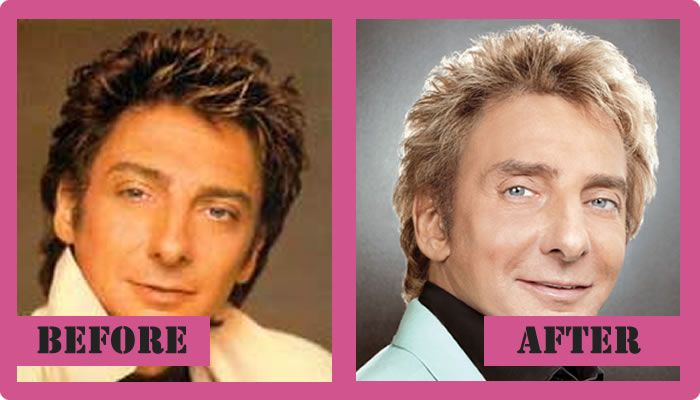 Barry Manilow Plastic Surgery Before And After Barry