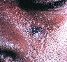 Discoid lupus erythematosus lesion of the face