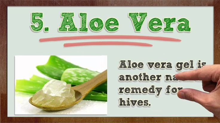 Natural Remedies for Hives - Natural Remedies for Hives Itching | Natural Treatment for Hives