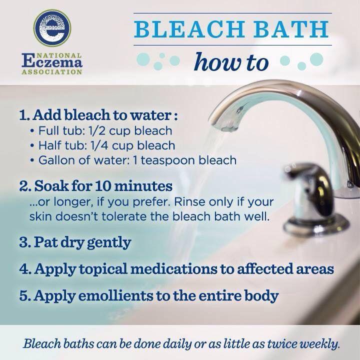 Bleach Bath Recipe For Ezcema Diysugarscrub Sick In 2019 Bleach Bath For Eczema Bleach Bath Eczema Treatment