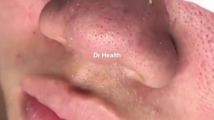 I'd like to educate you about different diseases of the skin, hair, and nails and Health Tips Beauty and give you some skin care advice as well.  Along the way, you will still see your favorites, what has become my bread and butter so to speak: pimples popped, blackheads extracted, cysts...  https://www.crazytech.eu.org/cystic-acne-blackheads-extraction-acne-treatment-on-face-part-15/