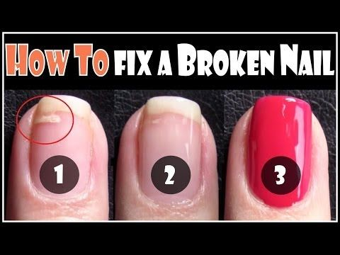 how to repair cracked and split nails