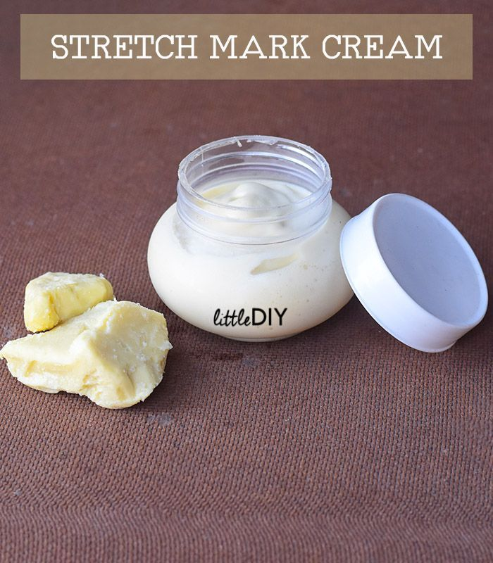 Stretch Marks Are Very Common And Can Appear As You Age Due To