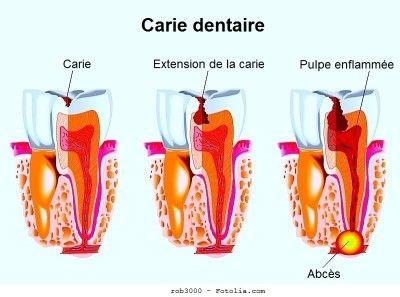 Un abcès dentaire est une infection de bouche, mâchoire, mandibule, visage et gorge qui commence d'abord comme une infection de la dent ou une carie.