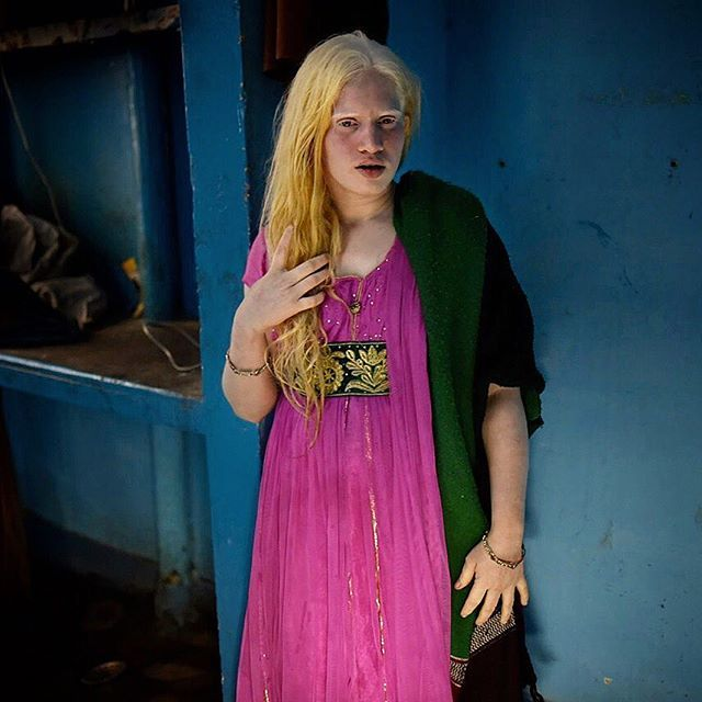Photo by Stephanie Sinclair @stephsinclairpix // Nineteen-year-old Pooja, who has the #rare genetic condition of #albinism, at her home in New Delhi, #India. While awareness is on the rise, people with albinism are still severely discriminated against, and even attacked, for their appearance in some countries - despite the fact it occurs in all racial and ethnic groups globally. People who have albinism have a reduced amount of melanin pigment in their skin, hair and/or eyes. In the U.S…