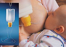 Breastfeeding After a Reduction (BFAR): Two Stories of Hope and Inspiration