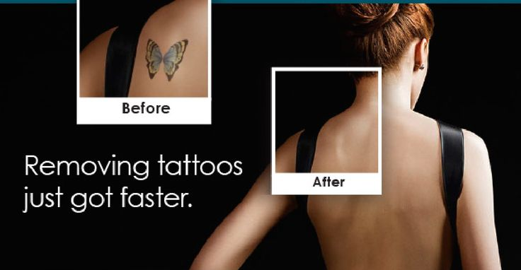 http://www.prlog.org/12498188-rhett-palmer-show-showcases-dr-frazier-and-dr-bailors-new-picosure-tattoo-removal-procedure.html …  Rhett Palmer Show Showcases Dr Frazier And Dr Bailor's New Picosure Tattoo Removal Procedure
