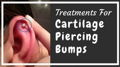 Get rid of cartilage piercing bumps