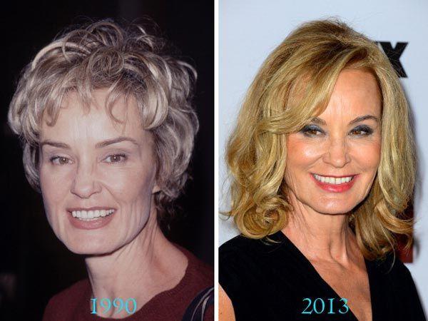 Jessica Lange Plastic Surgery Before