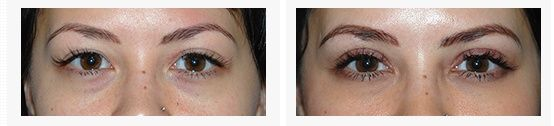 I absolutely love the change in my eyes that Dr Young did. People tell me: 'Wow, I can't believe your eyes and face look so good – I don't know what it is, but you look so much better!' Dr Young you really did a great job. Eye lift Bellevue at Aesthetic Facial Plastic Surgery
