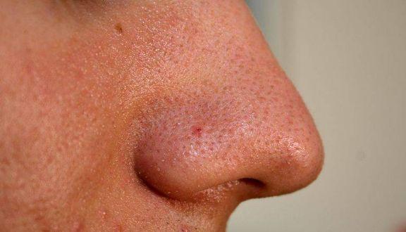 Elimina los PUNTOS NEGROS de la nariz en 3 minutos … WOW!!
