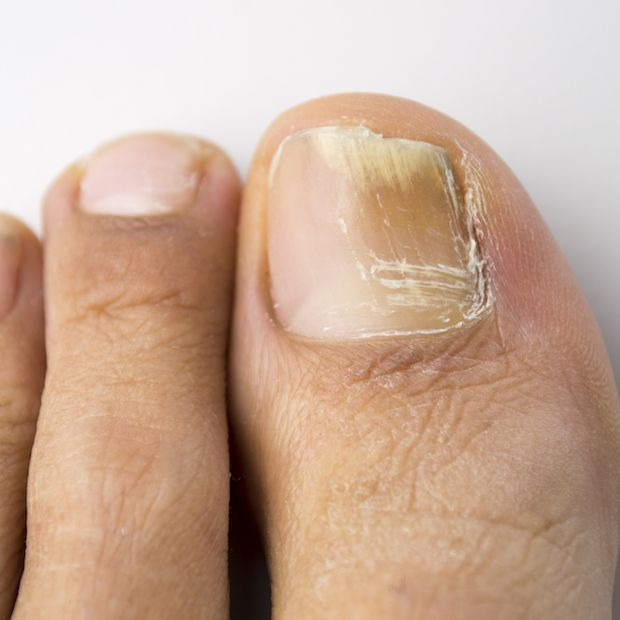 Fungal infections can make for unsightly, embarrassing toenails: One or more nails (usually on the big toe) can become discolored, oddly shaped, brittle,