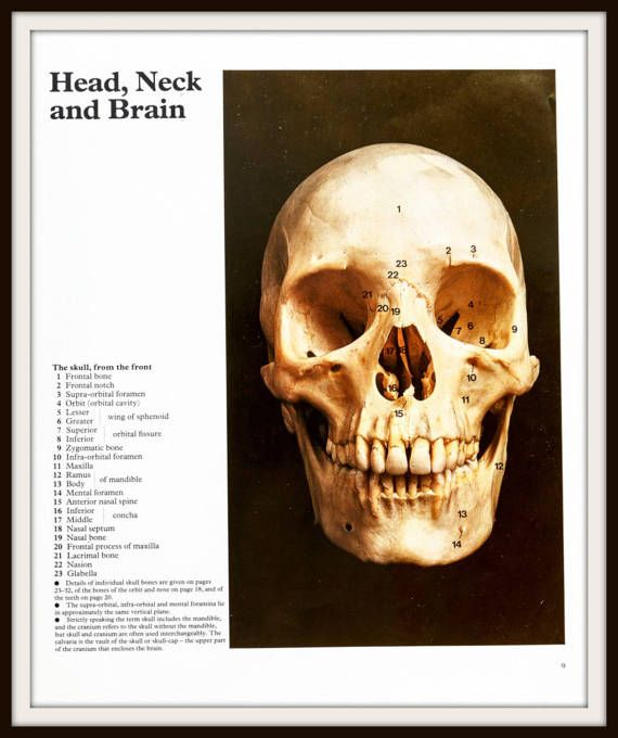 From the 1977 publication Color Atlas of human Anatomy by M.H. McMinn and T. Hutchings. Photographic prints of human skull showing skeleton, bones and teeth.  Scientific Medical Print. Human Skull. Head cutout. Human Anatomy. Vintage Medical Illustration #medicalillustration #scientificillustration #medicalprint #medicalwallart #scientificwallart #humananatomy #anatomyprint #vintagemedicalprint #vintagescientificprint #skeletonprint #skeletonwallart #anatomyprint