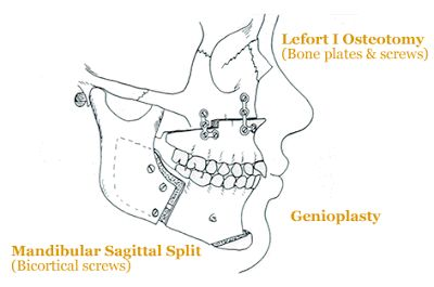 This blog documents double jaw surgery and a genioplasty and what follows after surgery! Great insight!