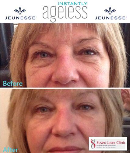Amazing results with #InstantlyAgeless #skin #skincare #women #men #essex #beauty #ELC #wrinkles http://bit.ly/1PJM4Vz