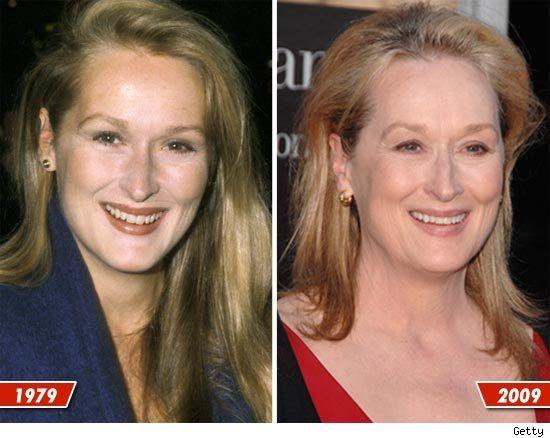Celebrity botox pics gone
