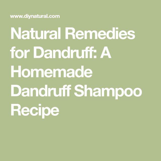Natural Remedies for Dandruff: A Homemade Dandruff Shampoo Recipe
