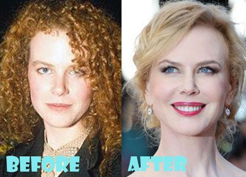 Nicole Kidman Plastic Surgery Before and After Photos