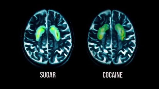 Fed-up documentary:  A powerful look at America's relationship with food, especially sugar. This brain scan compares the impact of sugar vs. cocaine.